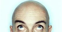 Bald_man_3